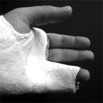 How much compensation for broken finger