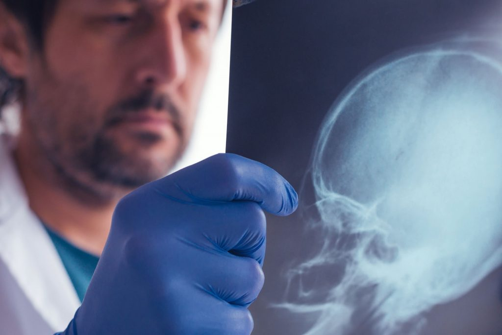examining x-ray of skull - brain/head injury claim compensation