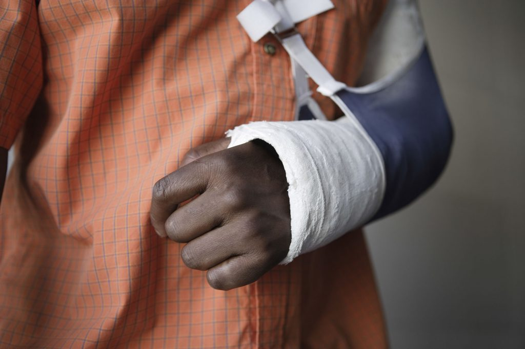 broken arm compensation claims personal injury